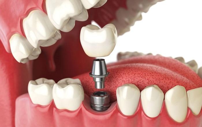 Что такое абатмент в имплантации зубов